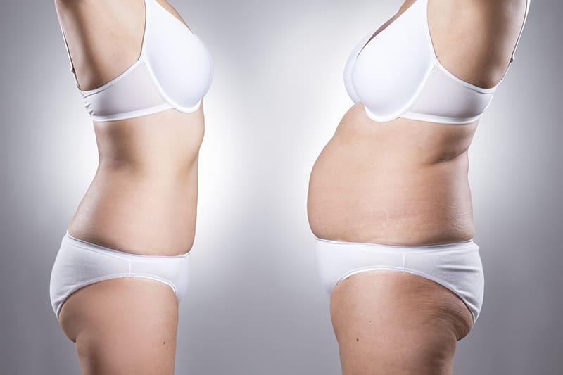 Лишний вес у девушек