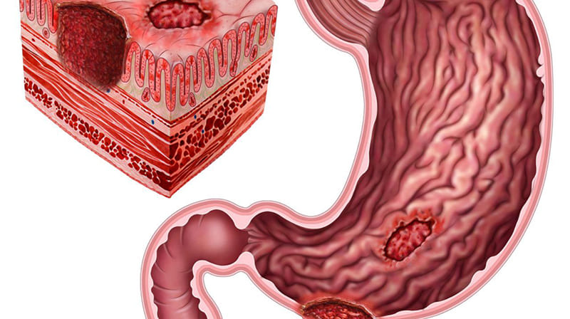 Желудочная язва у человека